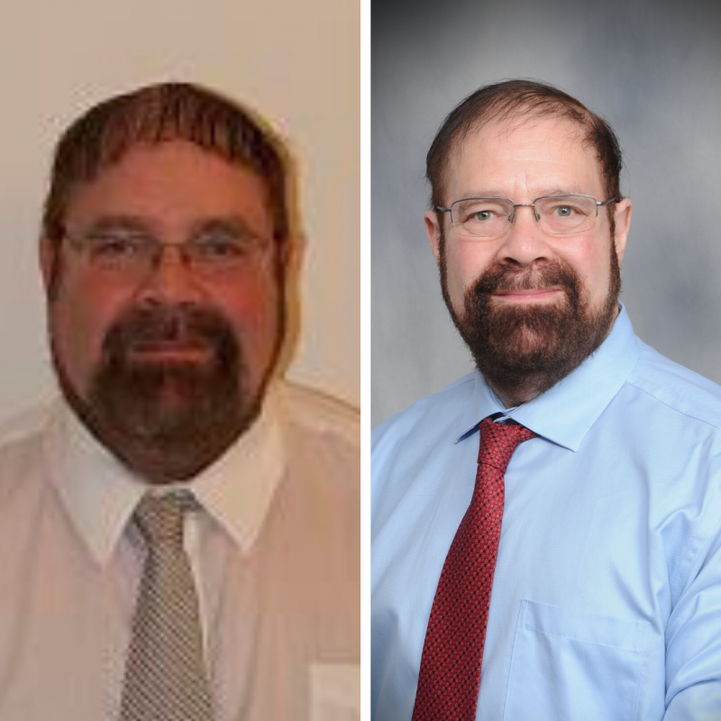 BeLite Before and after Rothman